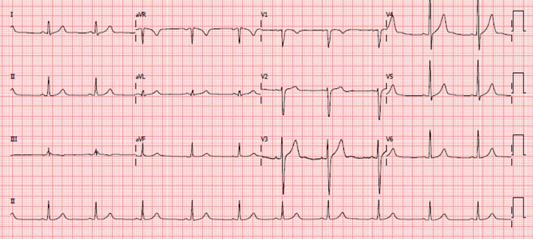 Imagem ECG